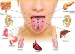 На какие заболевания указывает больной язык