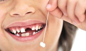 Как легко удалить молочный зуб у ребенка