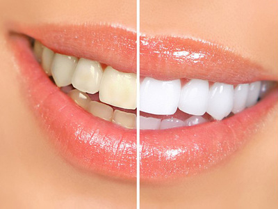 Как в домашних условиях сделать отбеливание зубов