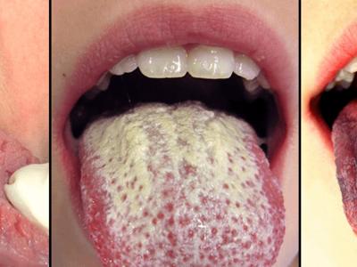 Белый налет на языке причины и лечение белого налета на