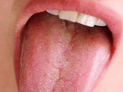 Пупырышки на языке у ребёнка: пупырышки на языке ближе к гортани