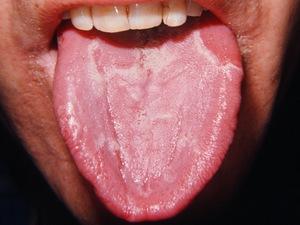 Заболевание глоссит