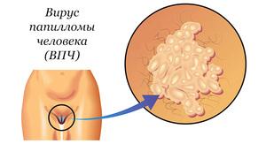 Вирус папилломы человека: причины