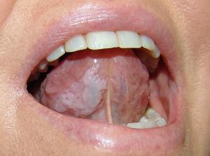 Что представляют собой белые болячки во рту