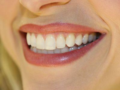 Больно ли вырывать зуб мудрости снизу