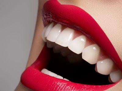 Глубокая чистка зубов или удаление зубного камня В чем опасность твердых отложений на зубах