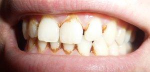Зубной камень-как его вылечить
