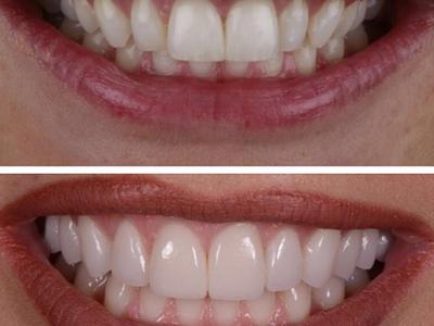 Пломба керамическая: накладка на зуб, плюсы и минусы установки