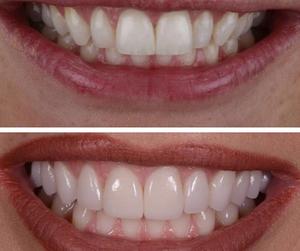 накладки на зубы виниры цены фото отзывы