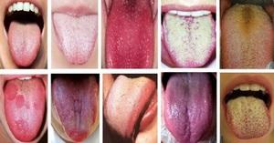 О каких заболеваниях говорит налет на языке