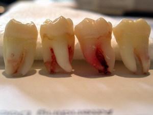 Почему необходимо удалять зуб
