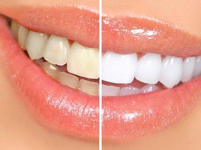 Отбеливание Amazing White в стоматологии. Быстро, надежно, безопасно. Клиники в САО и ЦАО.