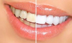 отбеливание зубов амазинг вайт отзывы
