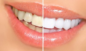 отбеливание зубов amazing white 24