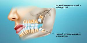 Как подготовиться к удалению зуба