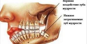 Как удаляют зуб мудрости