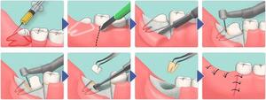 Когда следует удалить зуб мудрости