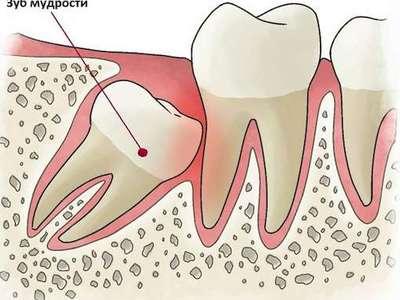 Удаление зуба мудрости на верхней челюсти