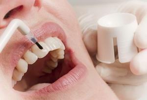 Особенности восстановления зубной эмали