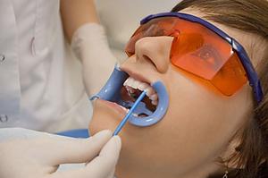 Покрытие зубов