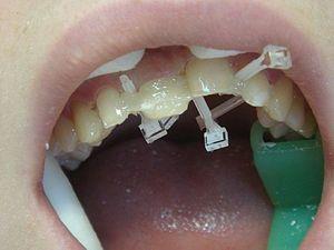 Способы выравнить зубы в домашних условиях