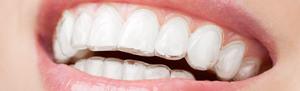 Пластины и капы для выравнивания зубов