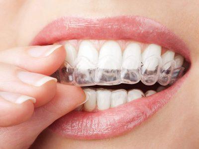 Выравнивание зубов народные методы