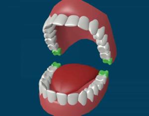 Количество зубов у взрослого человека, вместе с зубами мудрости - 32