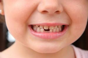 В детстве постепенно вырастает 20 молочных зубов