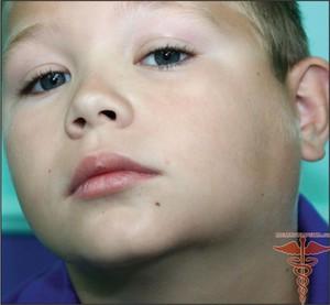 Лимфаденит: лечение заболевания