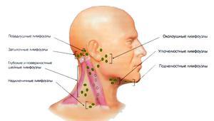 Как и чем лечить лимфаденит
