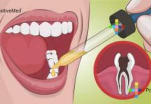 Как от зубной боли избавиться
