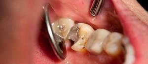 Зачем применяют мышьяк в стоматологии