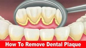 Народные способы борьбы с зубными камнями