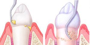 Причины появления зубных камней