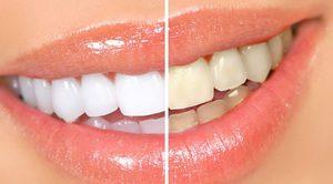 Какими способами отбеливают зубы