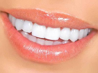 Что делает зубы белее