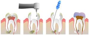 Этапы эндодонтического лечения