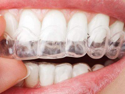 Прозрачные элайнеры для выравнивания зубов