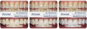 Новейший способ отбеливания зубов — Zoom 4