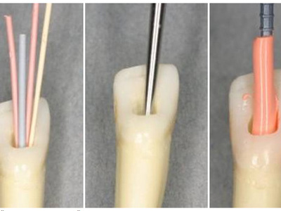 Лечение корневых каналов – механическая обработка и их пломбирование при пульпите и периодонтите