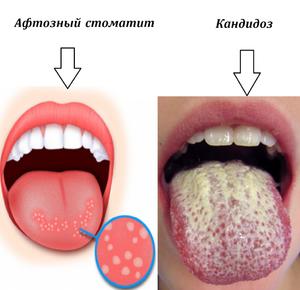 Заболевание Кандидоз