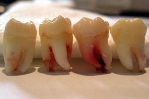 Количество зубов мудрости у человека и их функции