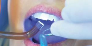 Технология пломбирования зубов