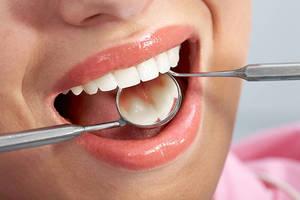 Пломбы на передних зубах