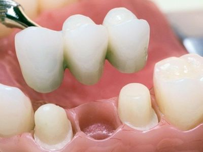 Пластмассовые коронки на передние зубы: плюсы и минусы, как классифицируются изделия из пластмассы