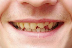Показания для обращения к врачу ортопеду стоматологу