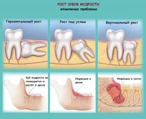 Какие могут быть проблемы с зубом мудрости