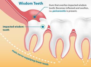 Проблемы с зубом мудрости