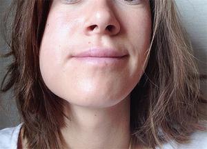 Особенности удаления ретинированных зубов